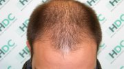 Female hair Loss Forum