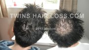 Hair loss early Prevention
